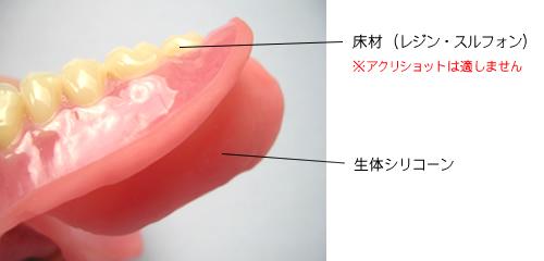 有床義歯内面適合法